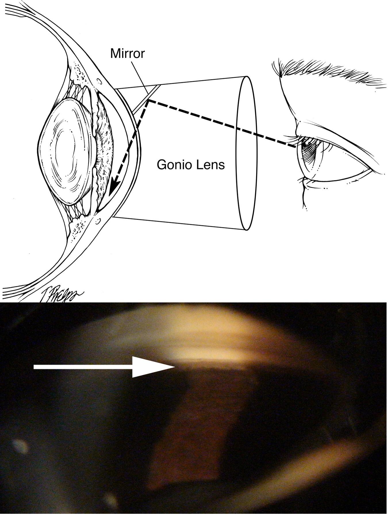 Angle Closure Glaucoma or Acute Glaucoma