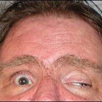 Cranial Nerve 3 - Controls 4 of 6 Extra-Ocular muscles