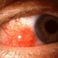 Red Eye Due to Episcleritis
