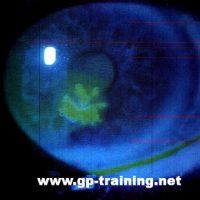 Herpes in the Eye - Herpes Simplex Keratitis