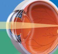 Eye Anatomy - understanding your eye