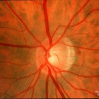 Optic Neuritis - Pain on Eye movement, reduced vision