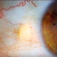 Pinguecula - yellow-white deposits on White of eye