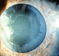 Pseudoexfoliation Syndrome and Glaucoma