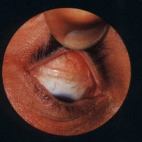 Retinal Detachment Surgery - Scleral Buckle and Vitrectomy