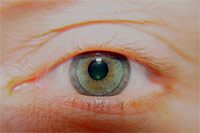 Rigid Gas Permeable Contact Lens - Care and maintanance