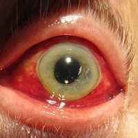 Subconjunctival hemorrhage - burst blood vessel in my eye